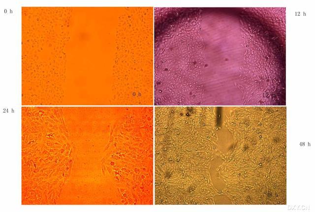 [讨论帖]细胞划痕实验